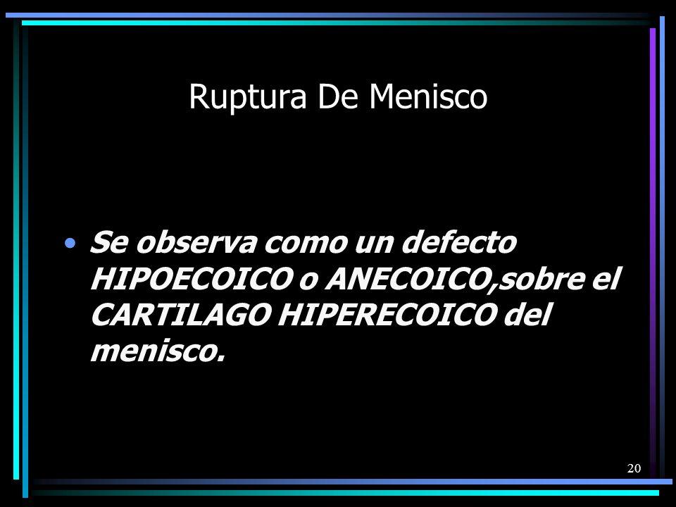 Ruptura De MeniscoSe observa como un defecto HIPOECOICO o ANECOICO,sobre el CARTILAGO HIPERECOICO del menisco.