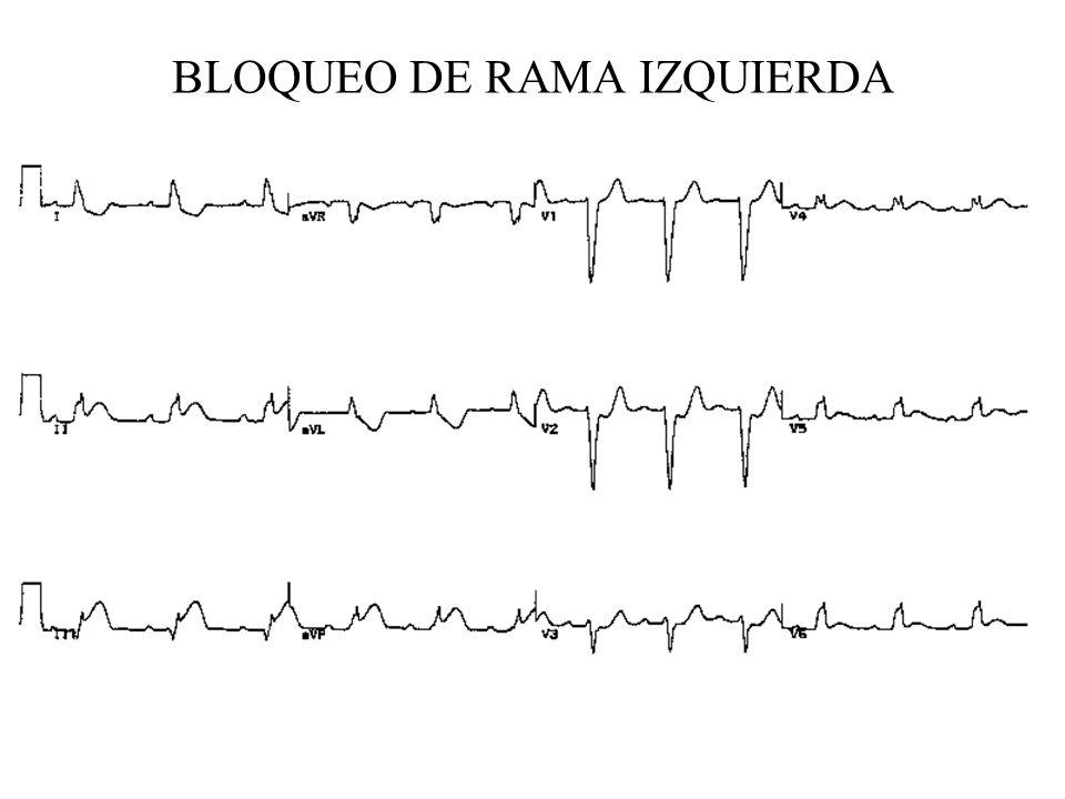 BLOQUEO DE RAMA IZQUIERDA