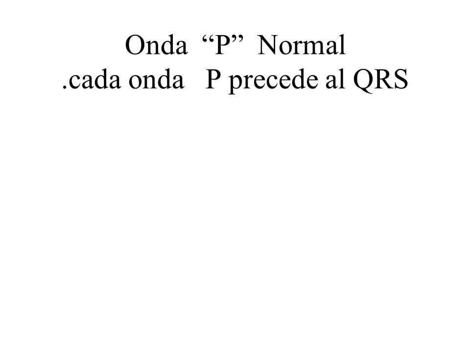 Onda P Normal .cada onda P precede al QRS