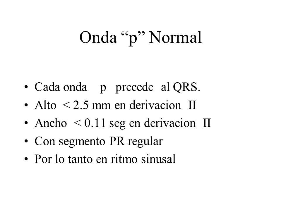 Onda p Normal Cada onda p precede al QRS.