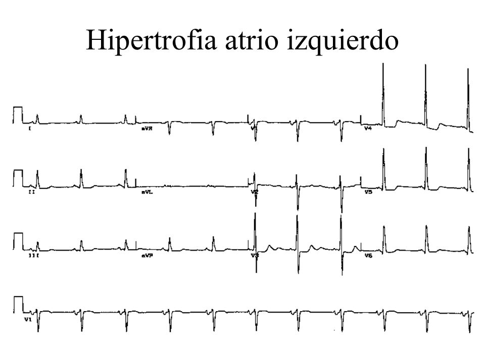 Hipertrofia atrio izquierdo