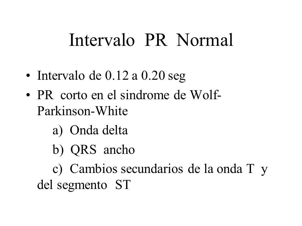 Intervalo PR Normal Intervalo de 0.12 a 0.20 seg