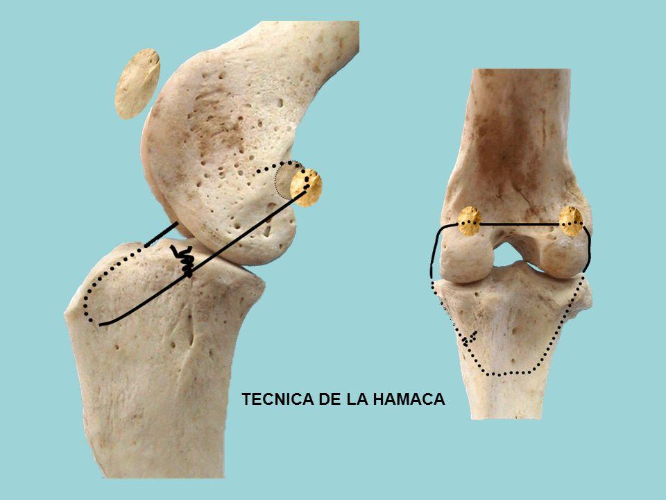 TECNICA DE LA HAMACA