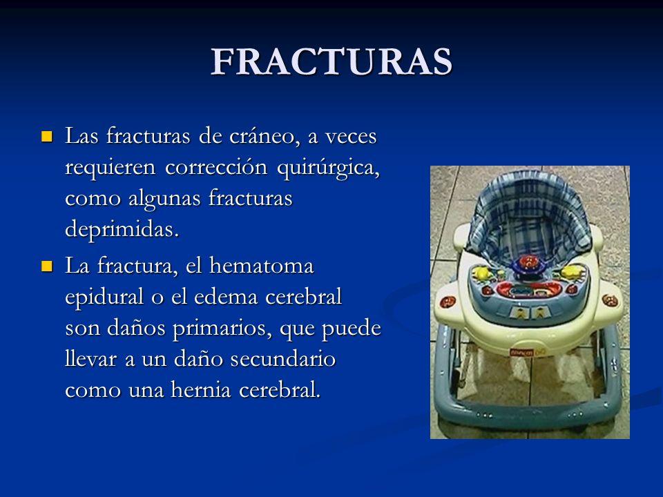 FRACTURAS Las fracturas de cráneo, a veces requieren corrección quirúrgica, como algunas fracturas deprimidas.