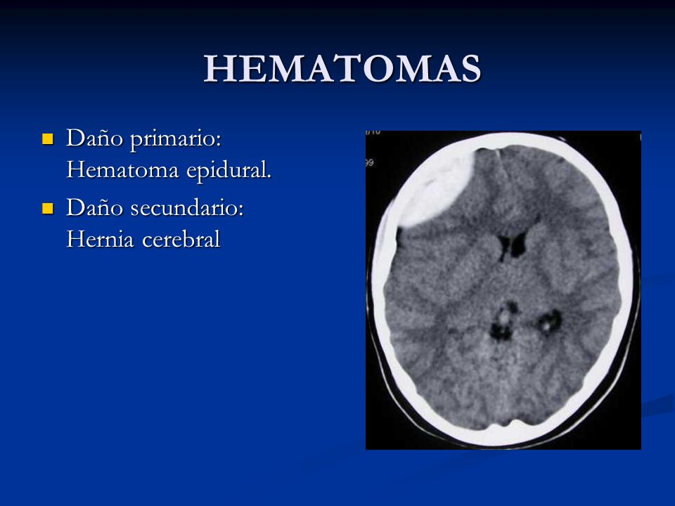 HEMATOMAS Daño primario: Hematoma epidural.