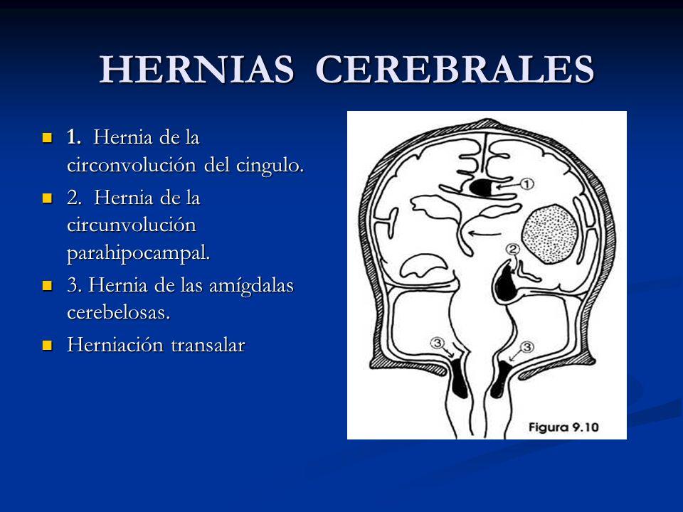 HERNIAS CEREBRALES 1. Hernia de la circonvolución del cingulo.