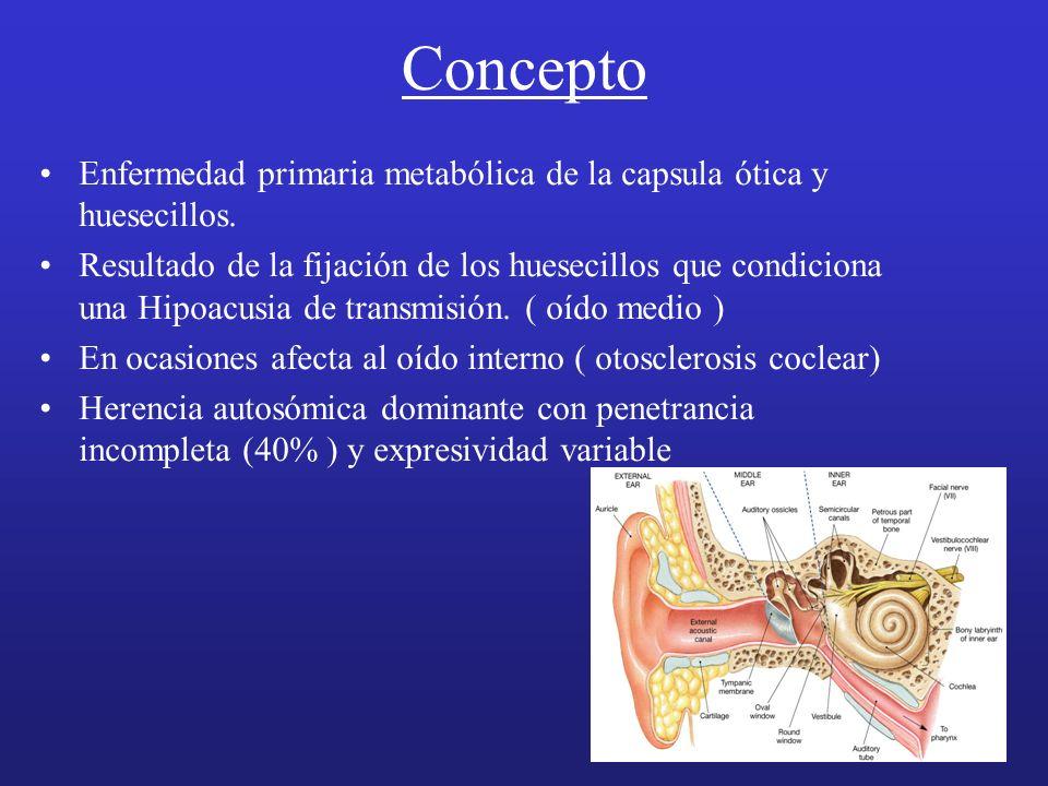 Concepto Enfermedad primaria metabólica de la capsula ótica y huesecillos.