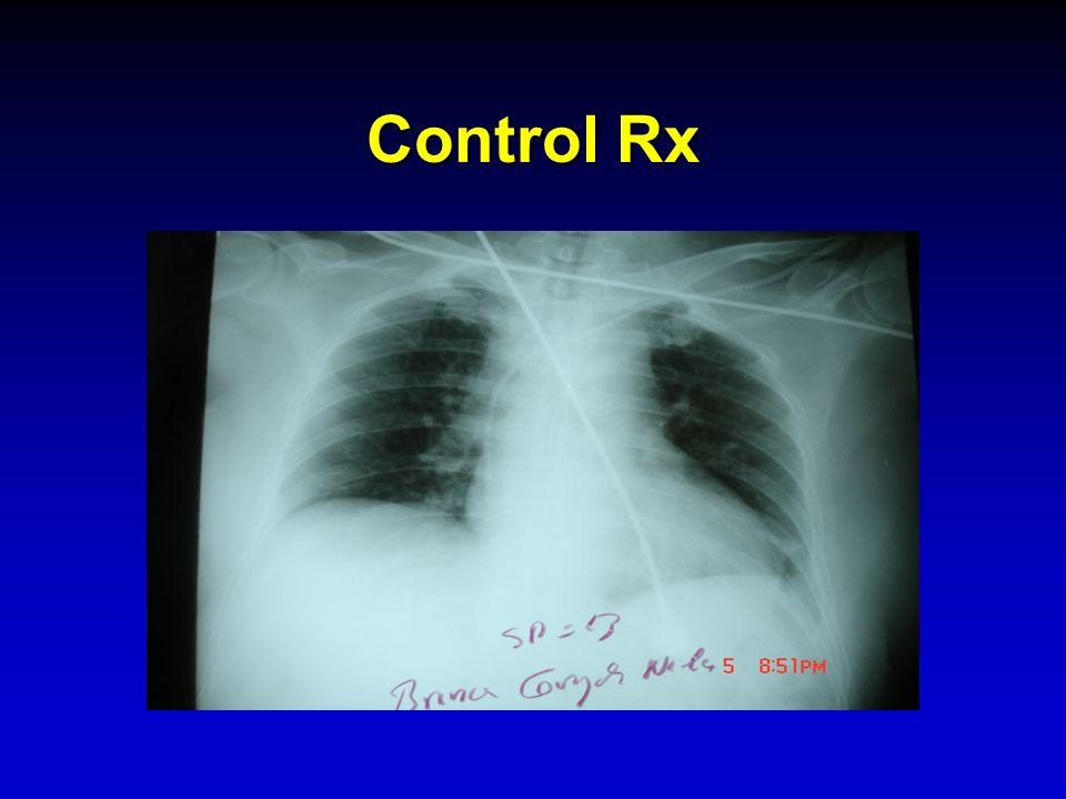 Control Rx