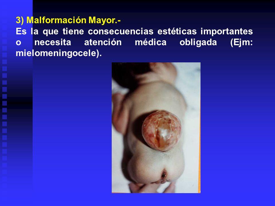 3) Malformación Mayor.-Es la que tiene consecuencias estéticas importantes o necesita atención médica obligada (Ejm: mielomeningocele).
