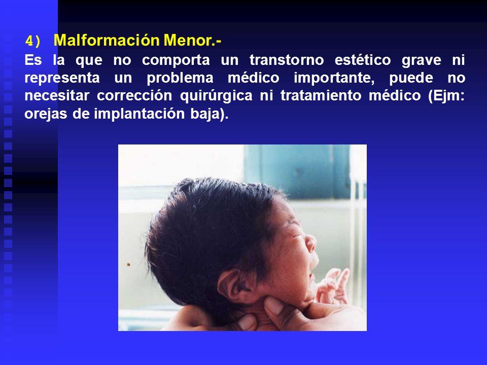 4) Malformación Menor.-