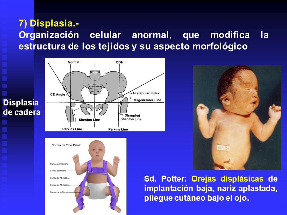 7) Displasia.-Organización celular anormal, que modifica la estructura de los tejidos y su aspecto morfológico.