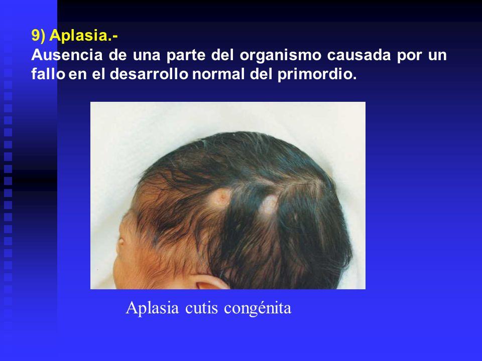 Aplasia cutis congénita