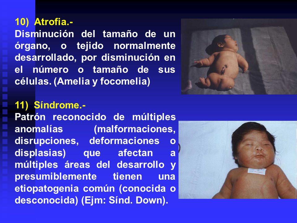 10) Atrofia.-