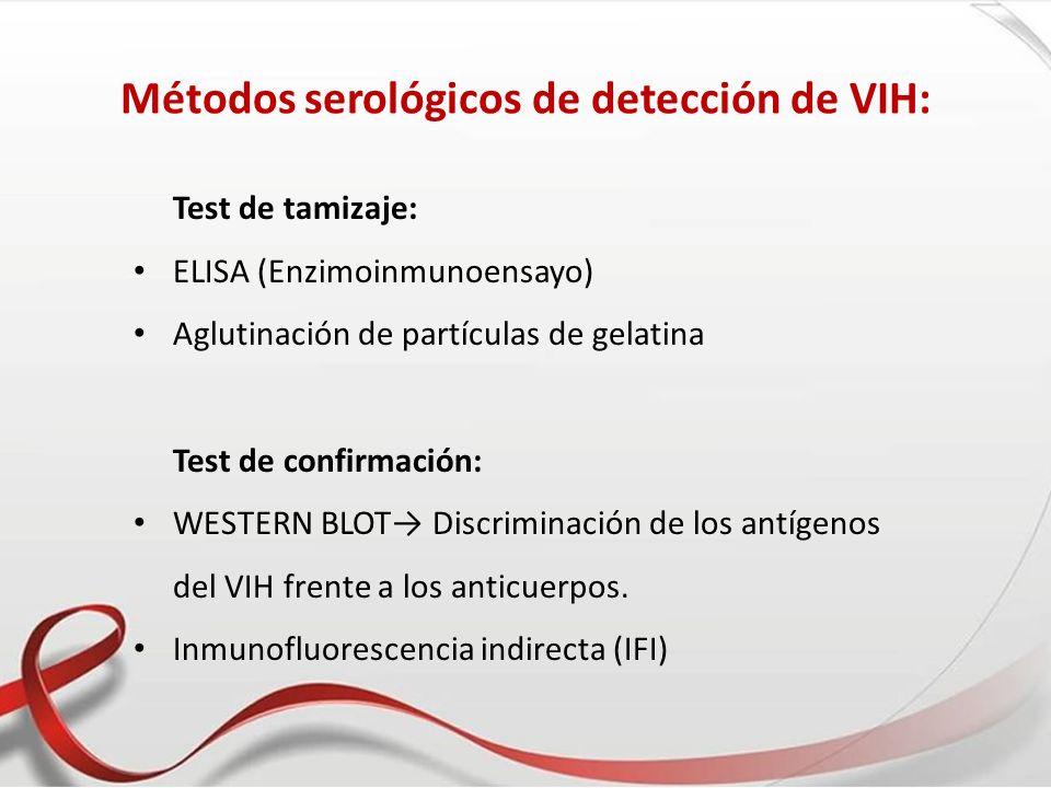 Métodos serológicos de detección de VIH: