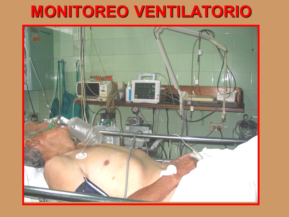MONITOREO VENTILATORIO
