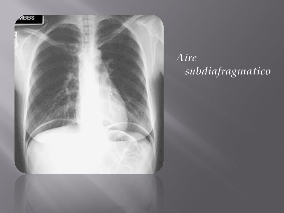 Aire subdiafragmatico