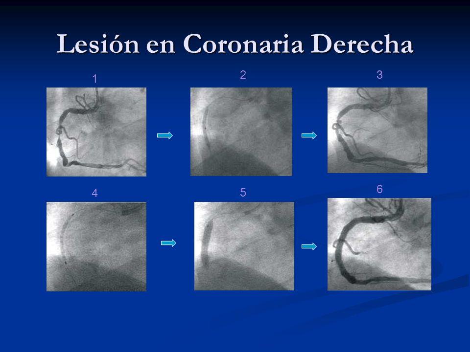 Lesión en Coronaria Derecha