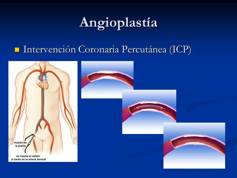 Angioplastía Intervención Coronaria Percutánea (ICP)