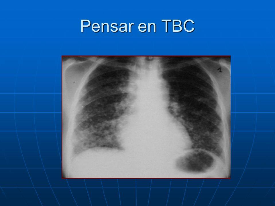 Pensar en TBC