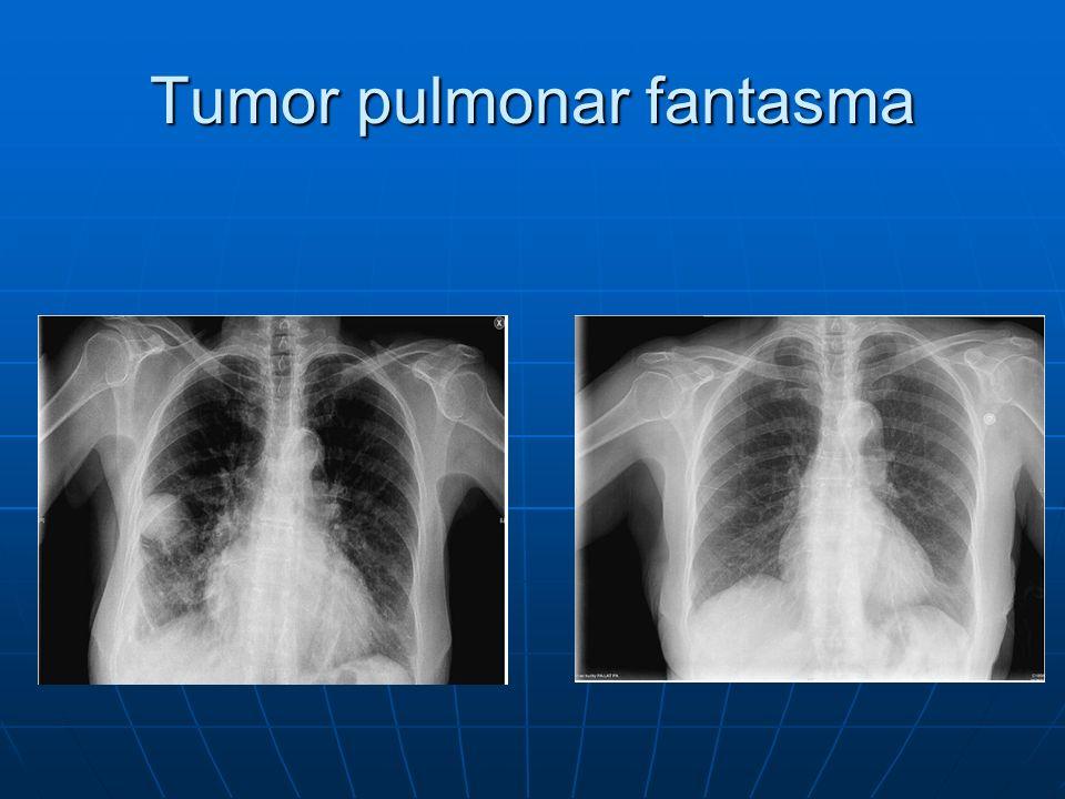 Tumor pulmonar fantasma