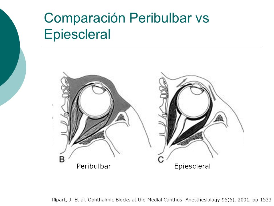 Comparación Peribulbar vs Epiescleral