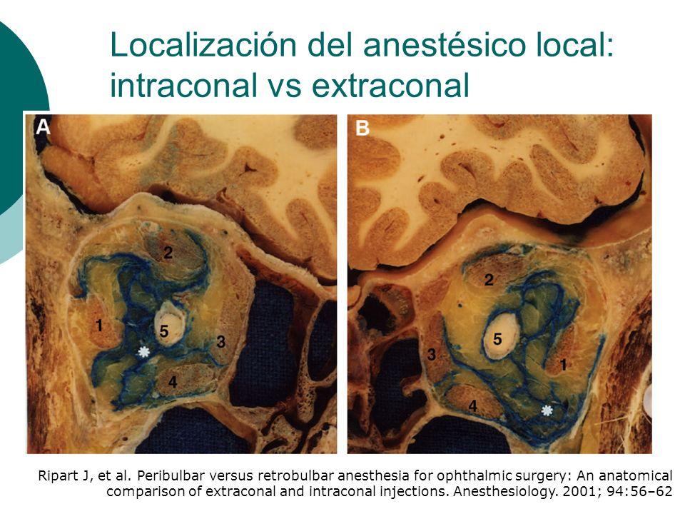 Localización del anestésico local: intraconal vs extraconal