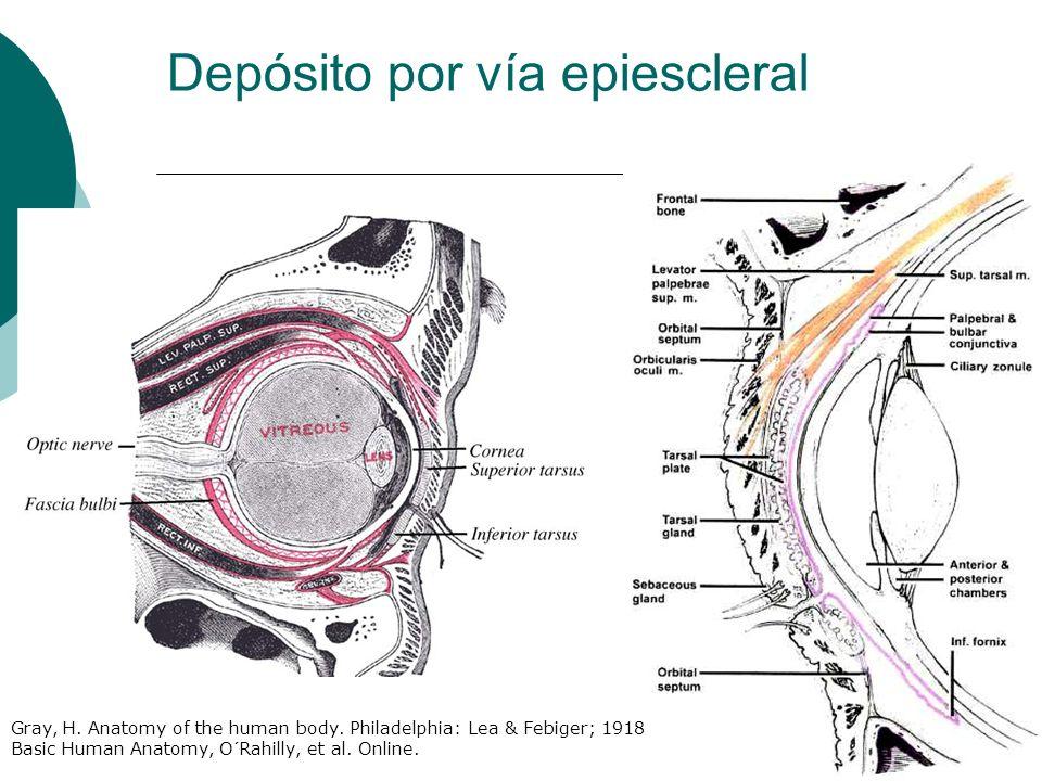 Depósito por vía epiescleral