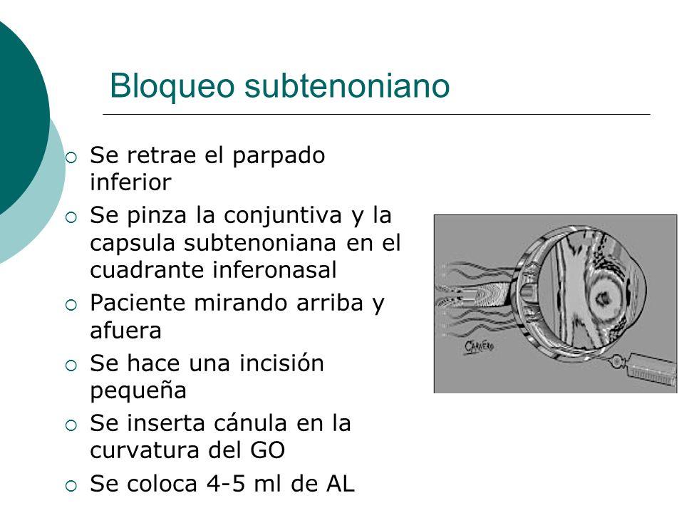 Bloqueo subtenoniano Se retrae el parpado inferior