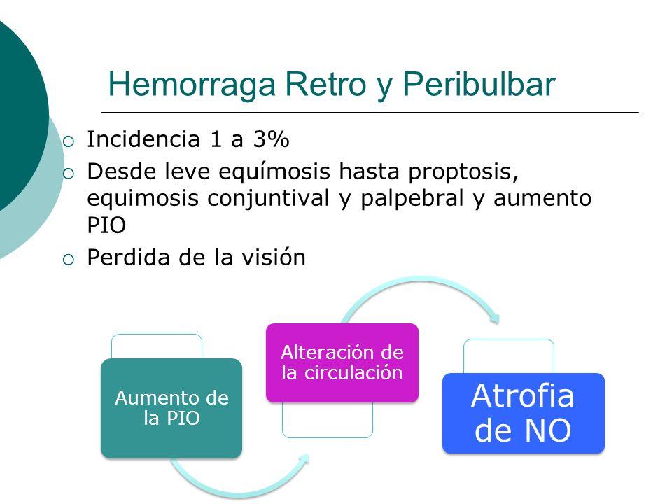 Hemorraga Retro y Peribulbar