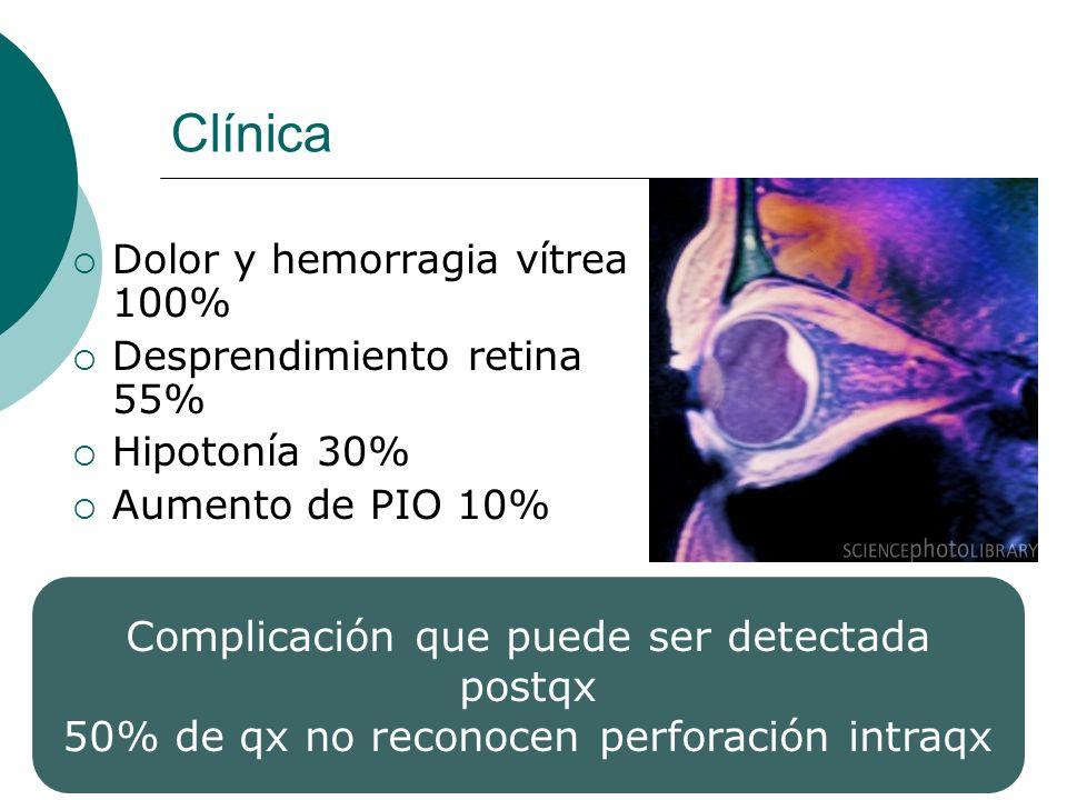 Clínica Complicación que puede ser detectada postqx