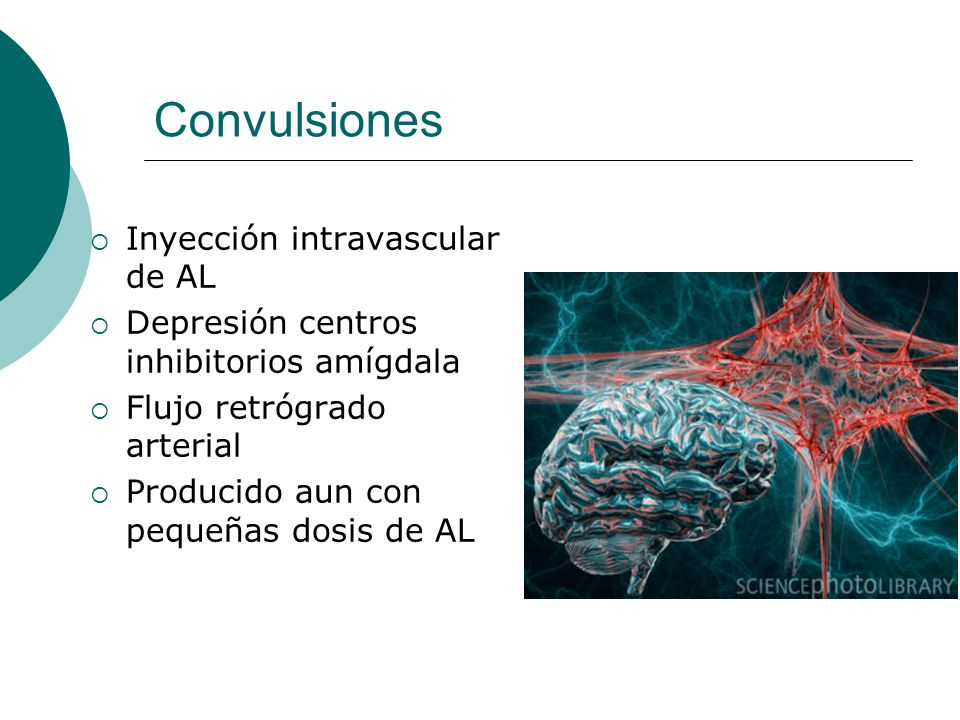 Convulsiones Inyección intravascular de AL