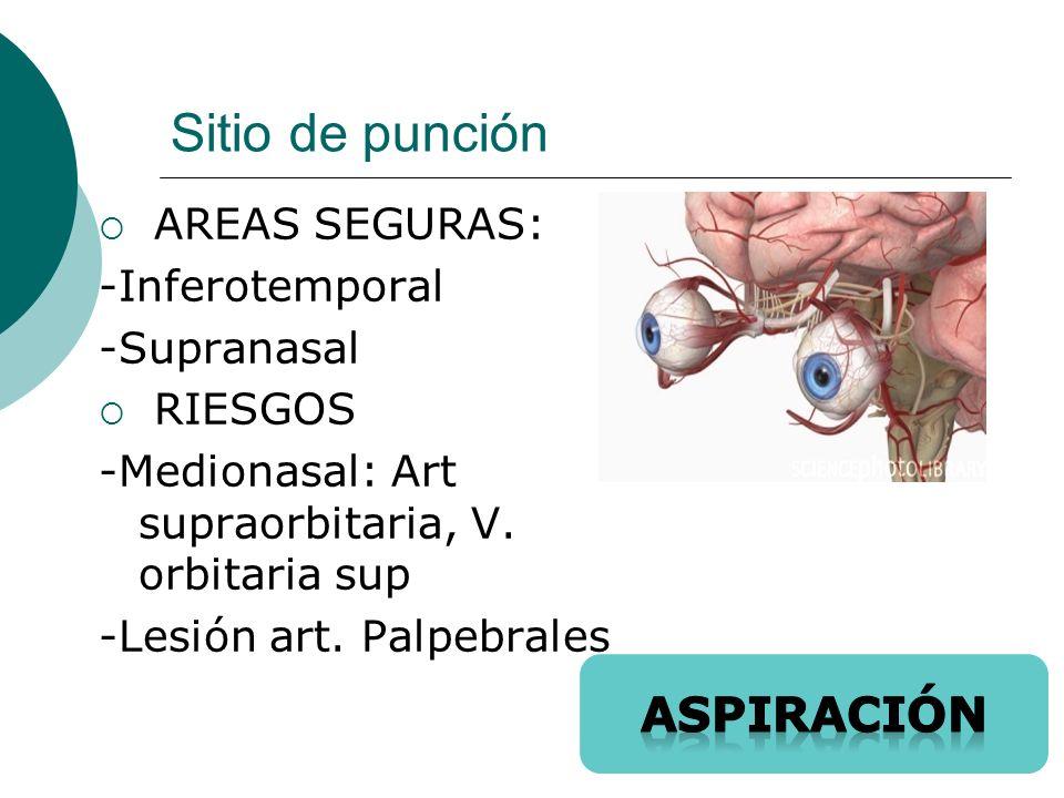 Sitio de punción aspiración AREAS SEGURAS: -Inferotemporal -Supranasal