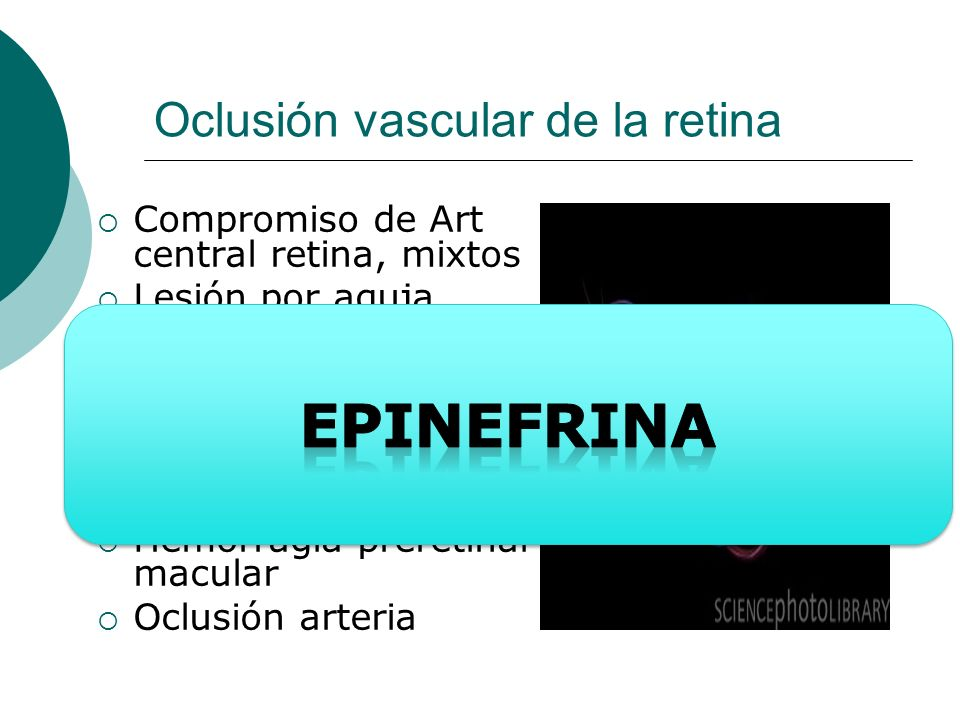 Oclusión vascular de la retina