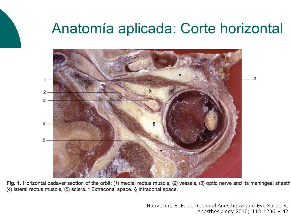 Anatomía aplicada: Corte horizontal