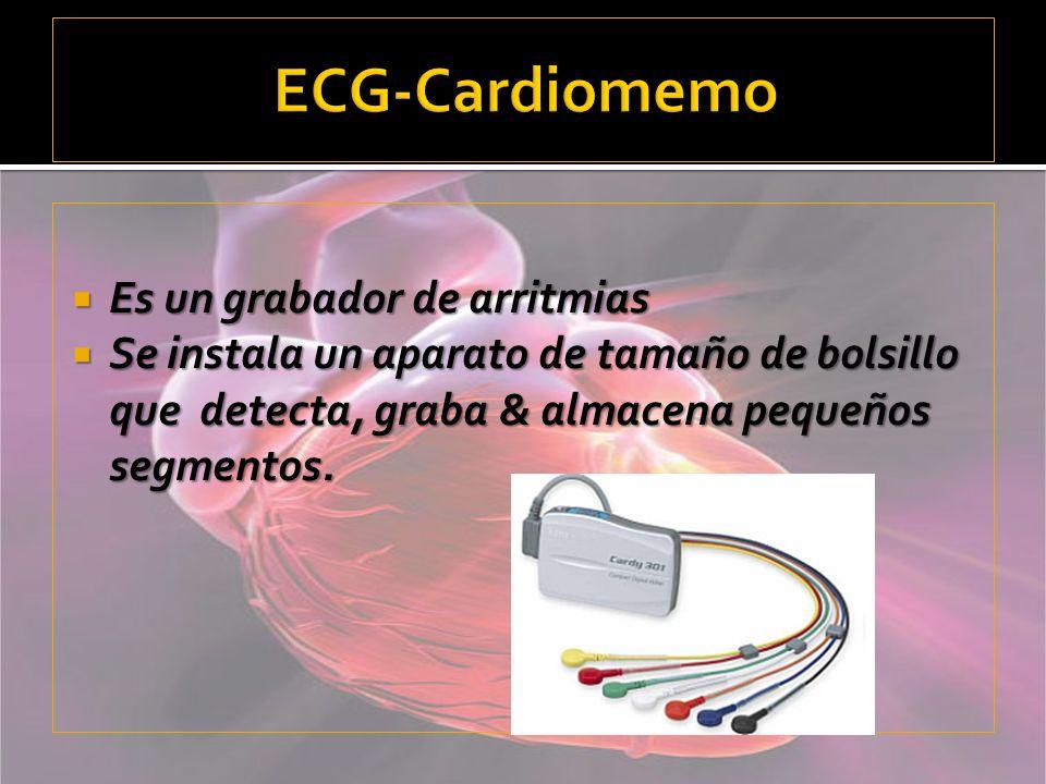 ECG-Cardiomemo Es un grabador de arritmias