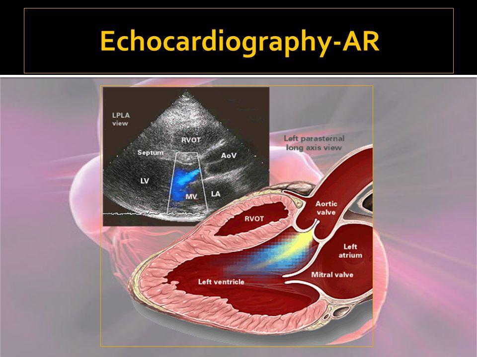 Echocardiography-AR