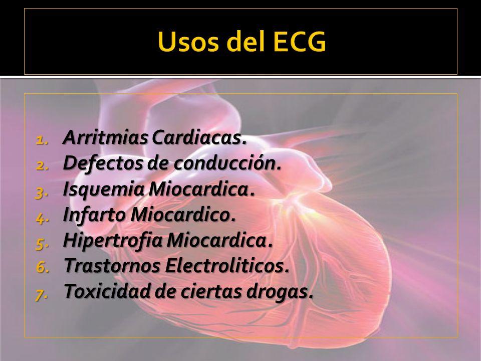 Usos del ECG Arritmias Cardiacas. Defectos de conducción.