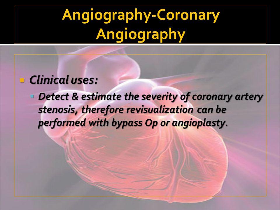 Angiography-Coronary Angiography