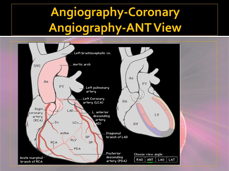 Angiography-Coronary Angiography-ANT View