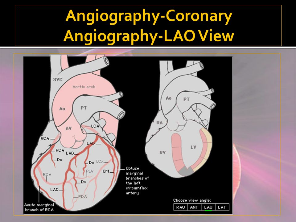 Angiography-Coronary Angiography-LAO View