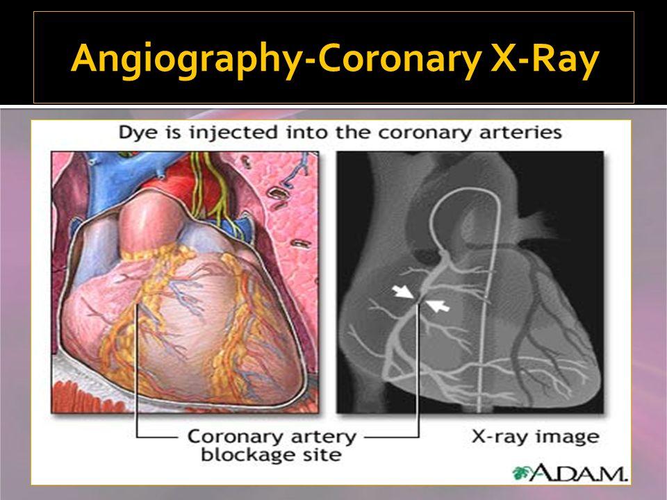 Angiography-Coronary X-Ray