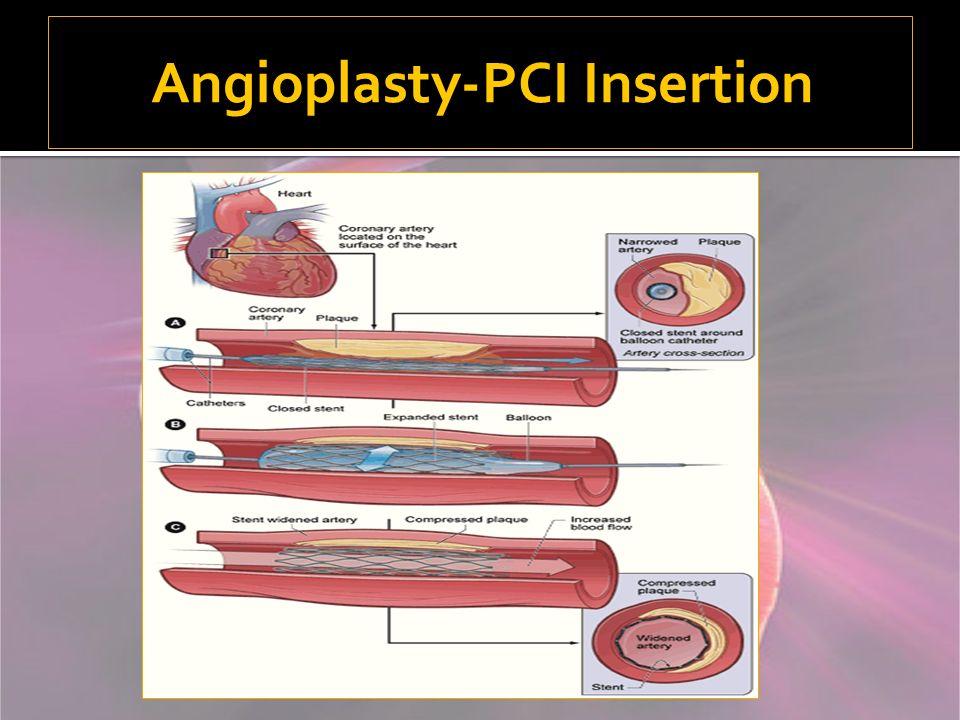 Angioplasty-PCI Insertion