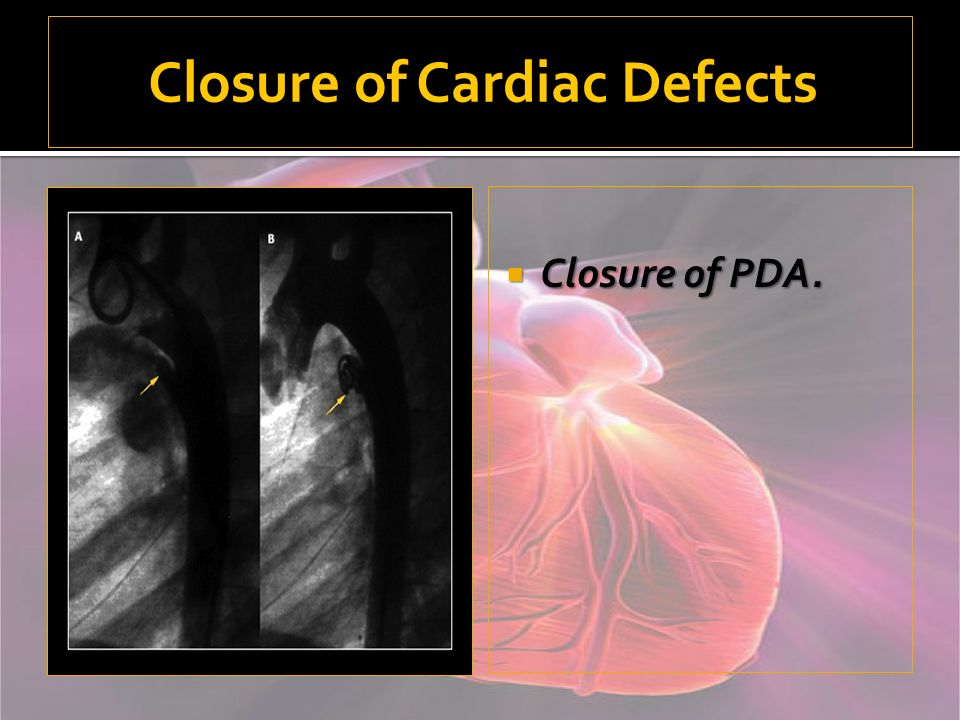 Closure of Cardiac Defects