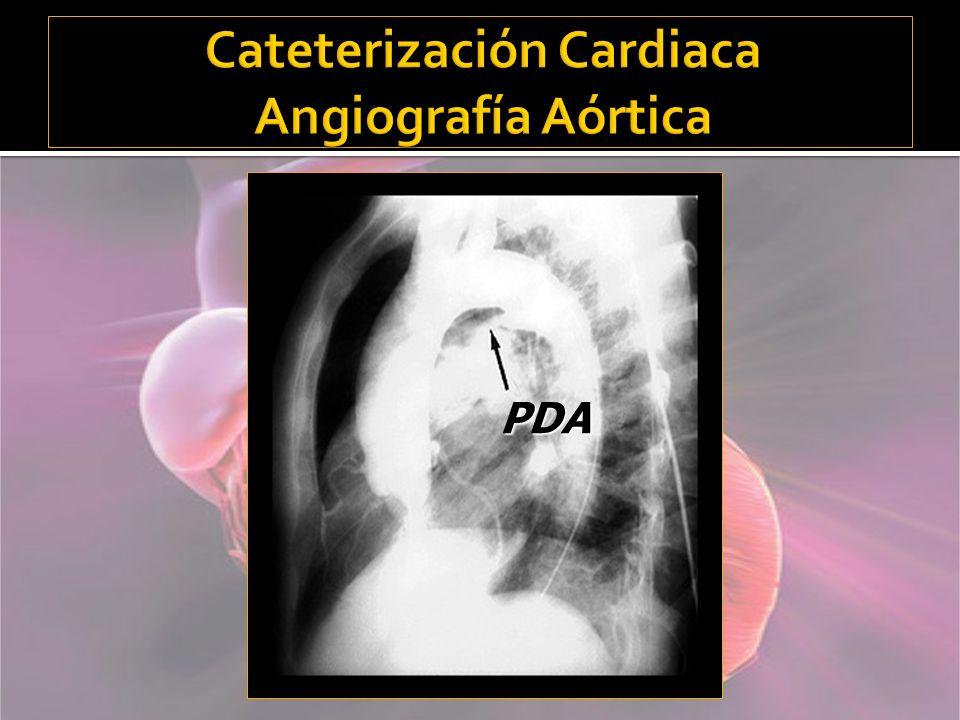 Cateterización Cardiaca Angiografía Aórtica