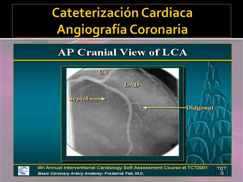 Cateterización Cardiaca Angiografía Coronaria