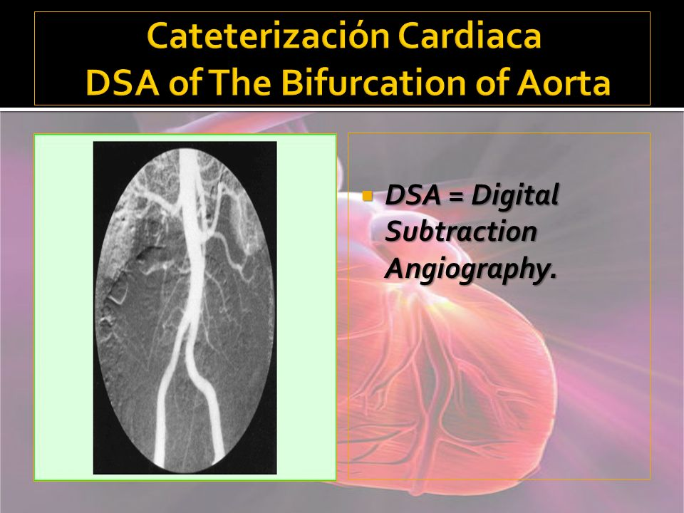 Cateterización Cardiaca DSA of The Bifurcation of Aorta
