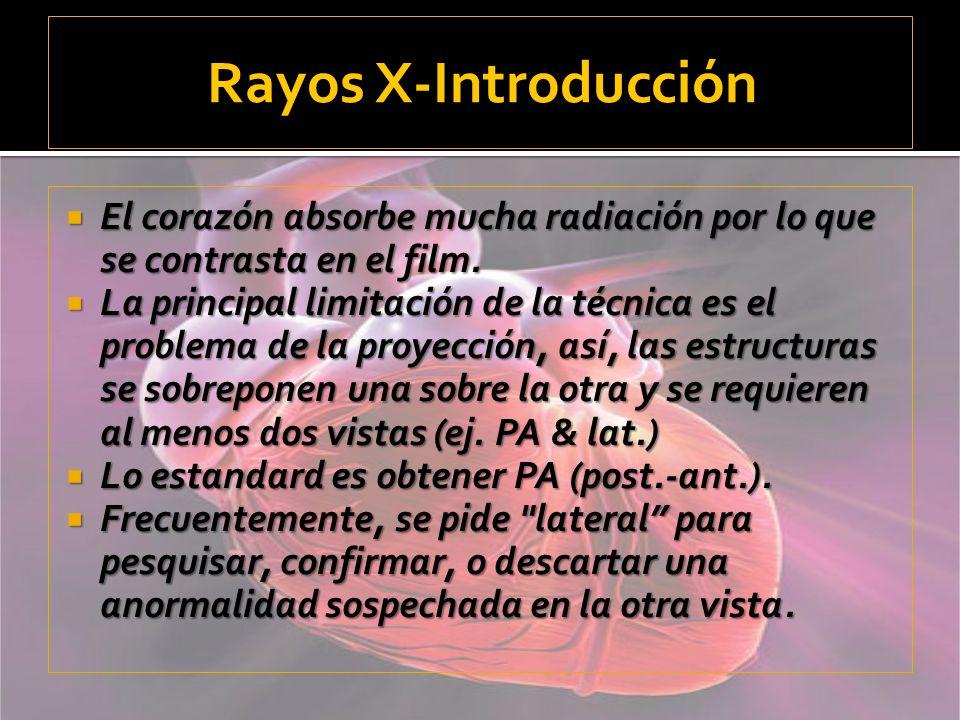 Rayos X-IntroducciónEl corazón absorbe mucha radiación por lo que se contrasta en el film.