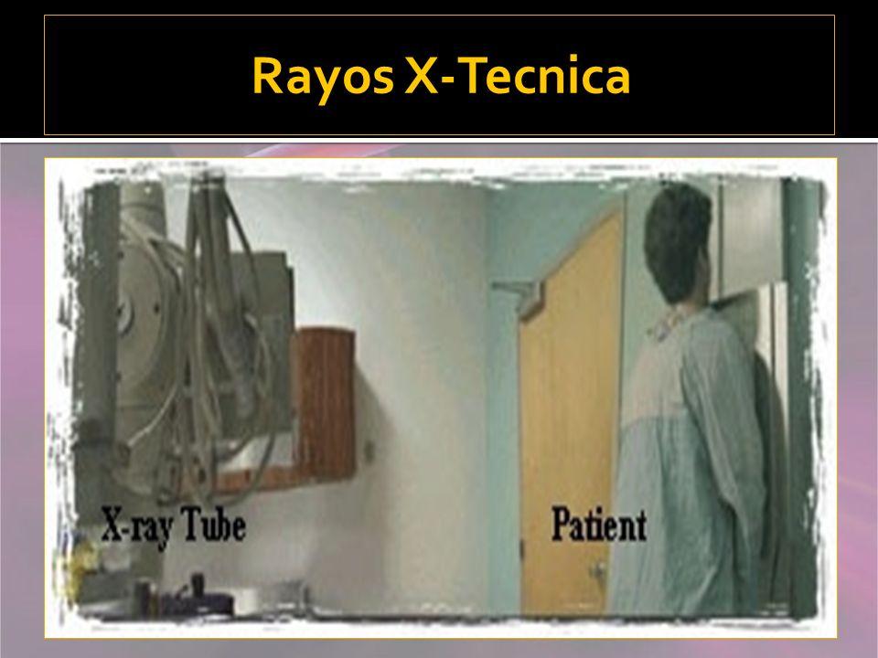 Rayos X-Tecnica