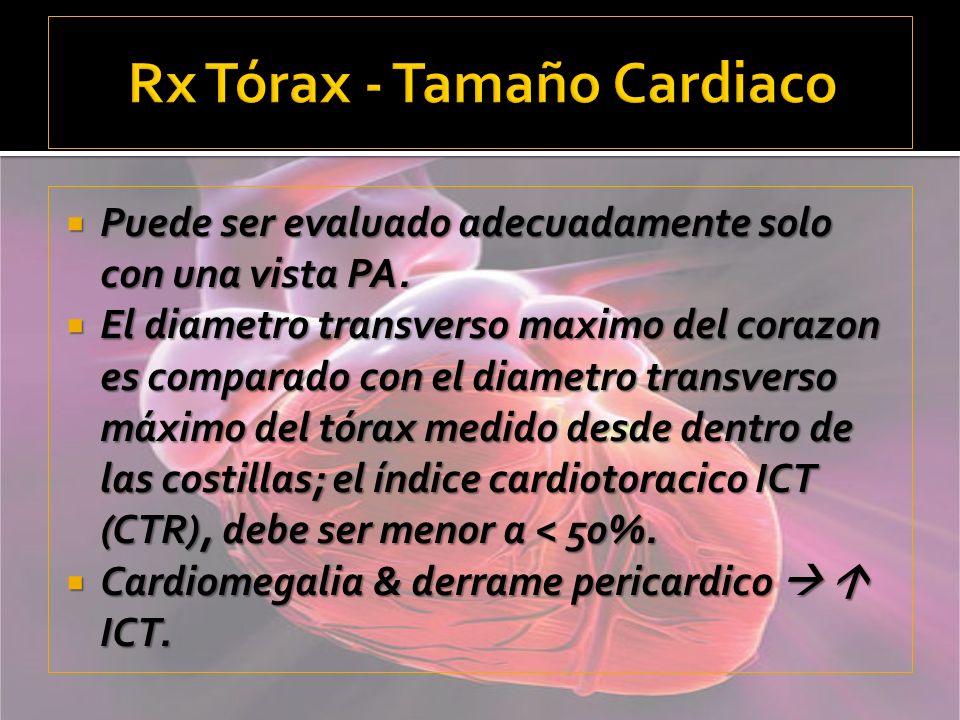 Rx Tórax - Tamaño Cardiaco