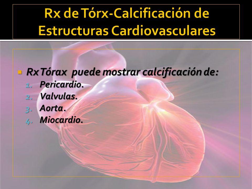 Rx de Tórx-Calcificación de Estructuras Cardiovasculares